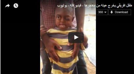بالفيديو.. طفل يخرج مقلة عينه من مكانها يثير ضجة على مواقع التواصل