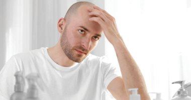 حارب الصلع.. وصفات طبيعية لعلاج مشاكل الشعر للرجال من غير عمليات زرع
