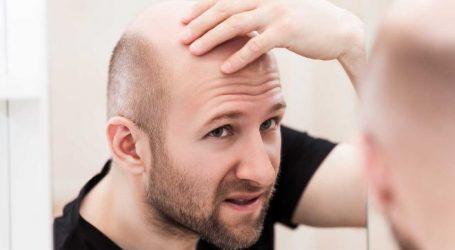 علاج تساقط الشعر بالأطعمة الصحية.. حافظ على ما تبقى منه