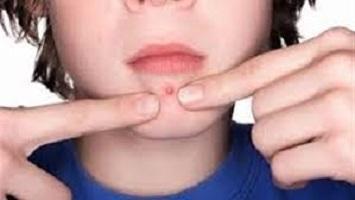 دراسة : اكتشاف لقاح جديد قد يمنع الإصابة بالبكتيريا التي تسبب الإلتهابات الجلدية