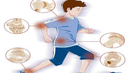 تعرف على أعراض وعلاج التهاب المفاصل الروماتويدى عند الأطفال