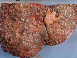 الأطفال أصحاب الأوزان الثقيلة أكثر عرضة لتليف الكبد