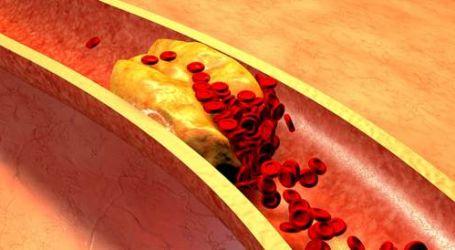 ما المعدل الآمن لمستويات الكوليسترول فى الدم لمنع الإصابة بتصلب الشرايين؟
