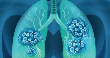 ما هى عقيدات الرئة وهل يمكن تحولها إلى سرطان؟