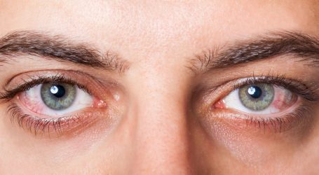 تعرف علي أبرز مسببات احمرار العين وكيف تتجنبها