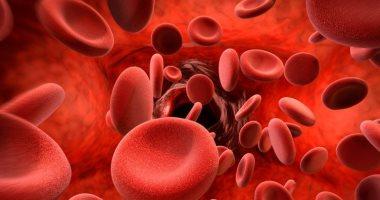 أعراض الأنيميا وأسباب الإصابة بنقص الحديد